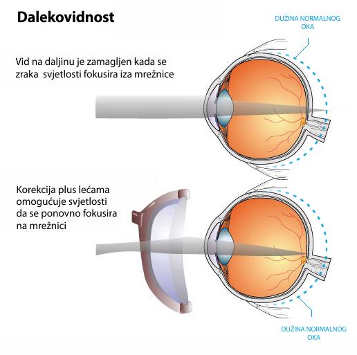 látomás kramatorsk olyan személy, akinek látása 500%